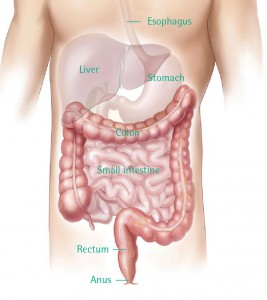 Kanker Kolorektal